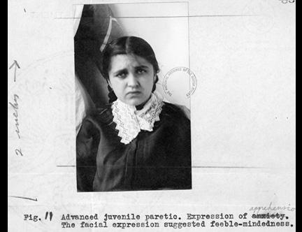 Ellis Island, Feebleminded, photograph, expression,